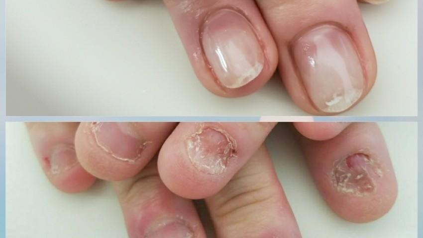 皮膚科で治らない!と言われた、深爪のお客様