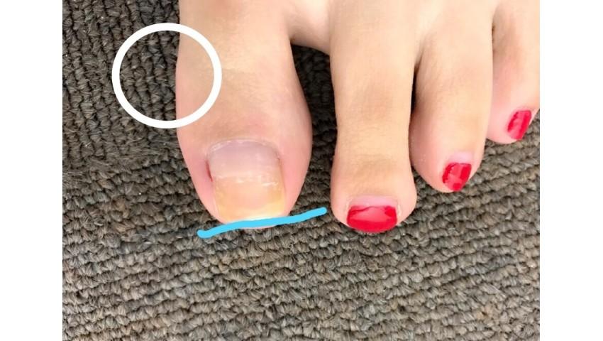 足の爪のカットについて…♬